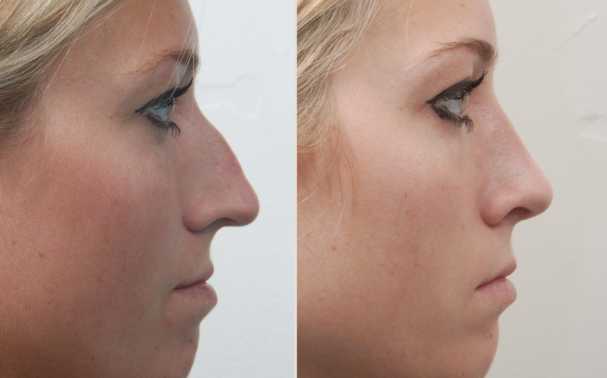 Ринопластика выравнивание носа