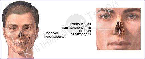 013-nosovaya-peregorodka