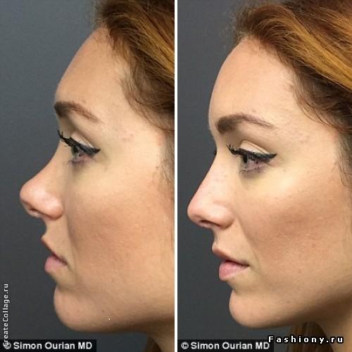 Филлеры для коррекции носа фото