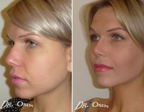 Горбинка носа операция