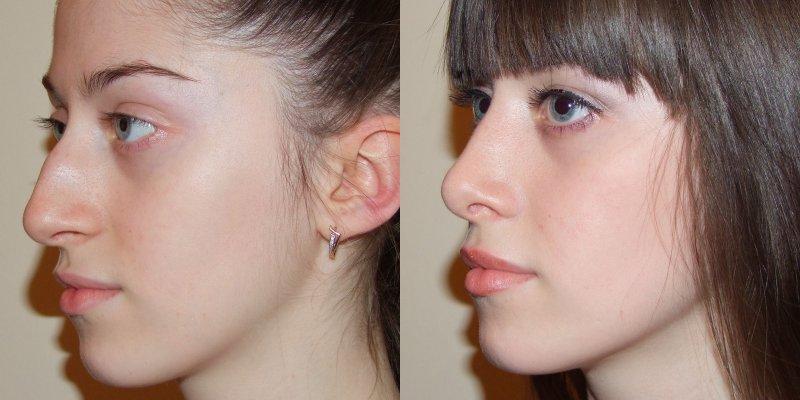 Ринопластика до и после фото