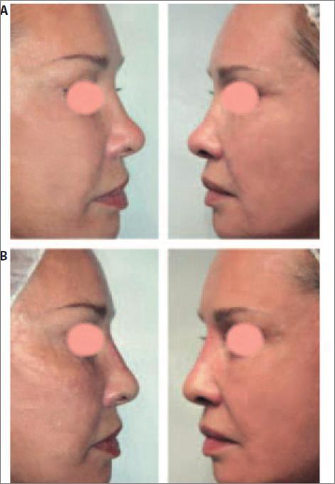 Асимметрия крыльев ноздрей кончика и спинки носа после