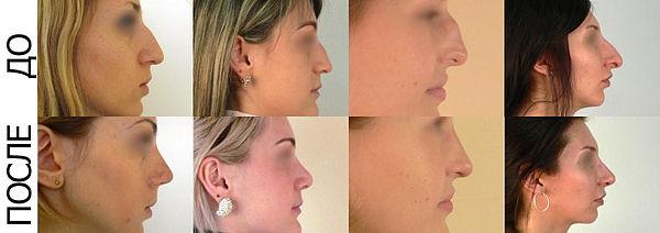 Где делают ринопластику носа