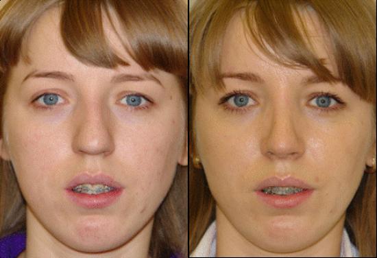 Ринопластика кончика носа - фото до и после, видео и ...: http://doctorplastik.com/rinoplastika/konchika-nosa/