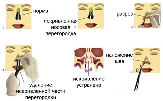 iskrivlenie-nosovoj-peregorodki