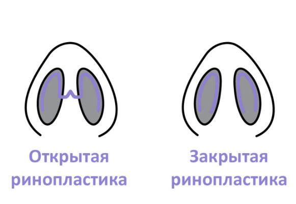 Ринопластика матки