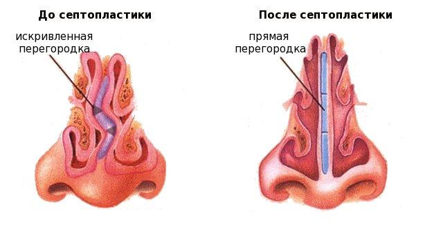 Осложнения после септопластики перегородки носа