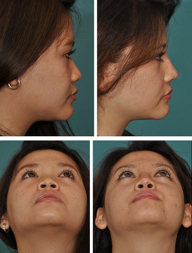 Исправление формы носа без операции  Отзывы и цены
