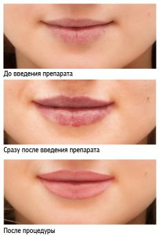 images-stories-61_lips