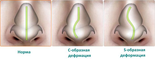 iskrivlenie-nosovoj-peregorodki-1