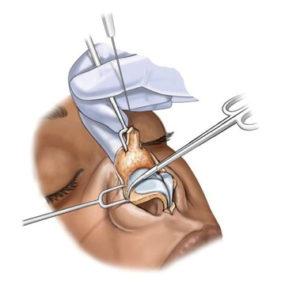 open-rhinoplastika1