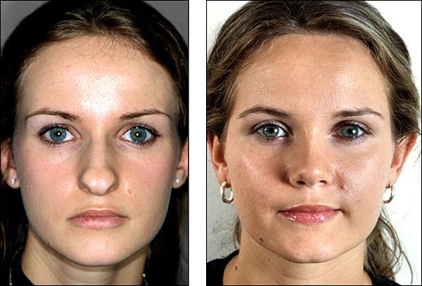 Как сделать коррекцию носа