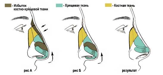 shema-rinoplastika