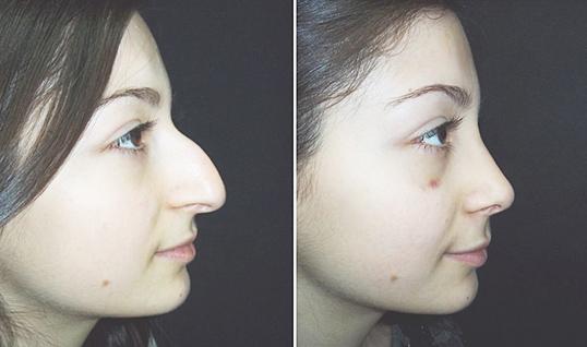 Ринопластика носа в краснодаре