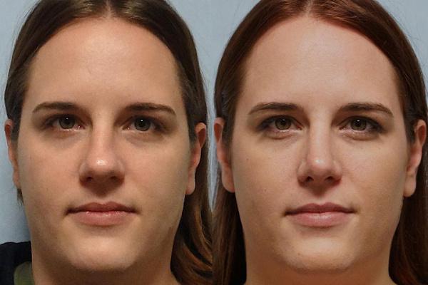 Ринопластика кончика носа коррекция концевой части