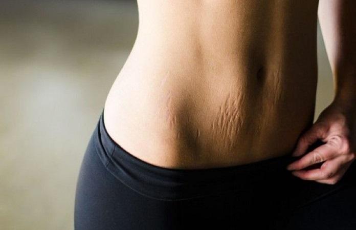 Как избавиться от растяжек кожи?