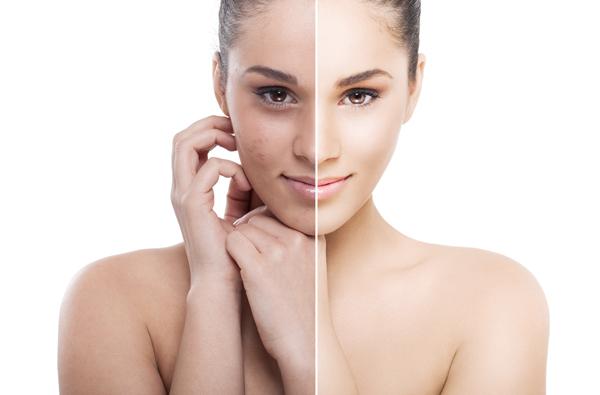 Как проводится отбеливание кожи?