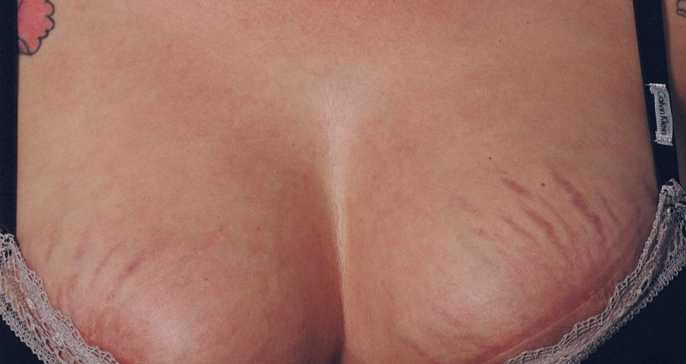 Растяжки на коже груди