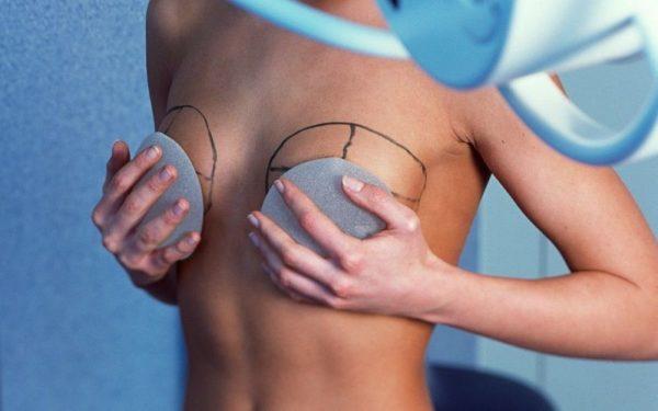 Имплантанты для увеличения груди